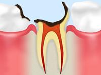 悪化した虫歯を放置すると……